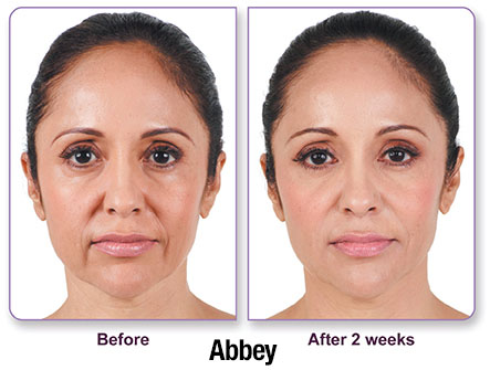 Juvederm results photo 2
