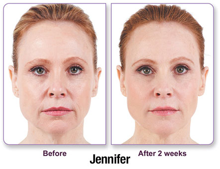 Juvederm results photo 3