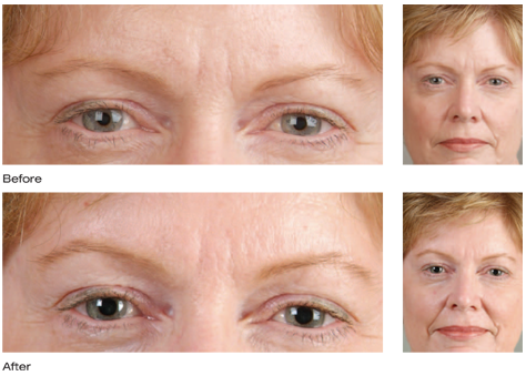 Botox Cosmetic results photo 2