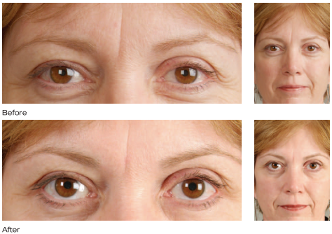 Botox Cosmetic results photo 3
