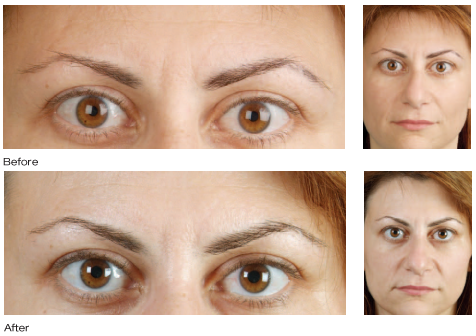Botox Cosmetic results photo 4