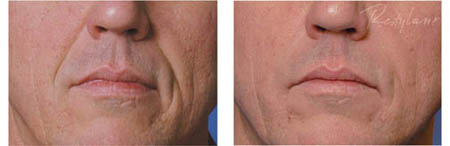 Albuquerque Dermatology Associates PA: Dermal Fillers